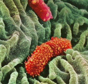 crop-Esophagus-lining-and-helpful-bacteria-300x286